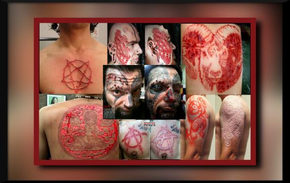 scar tats